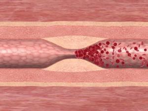 Bei einer Thrombose kommt es zum Verschluss eines Blutgefäßes durch ein Blutgerinnsel.