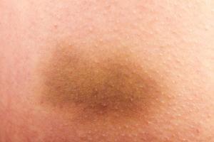 Hautverfärbungen und Wadenschmerzen können ein Hinweis auf eine Thrombose sein.