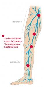 Venenthrombosen im Bein können an verschiedenen Stellen auftreten.